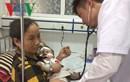 Trẻ mắc sởi bị biến chứng nguy kịch do chưa tiêm phòng