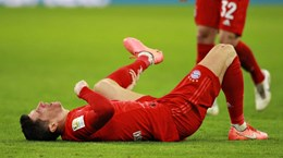 Lựa chọn nào cho Hansi Flick khi Robert Lewandowski chấn thương?